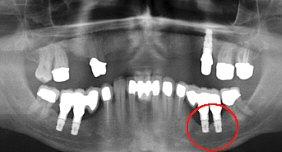 furchtbare schmerzen implantat